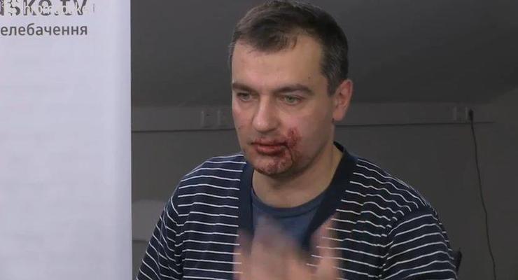 В Киеве в Мариинском парке избили журналистов - СМИ